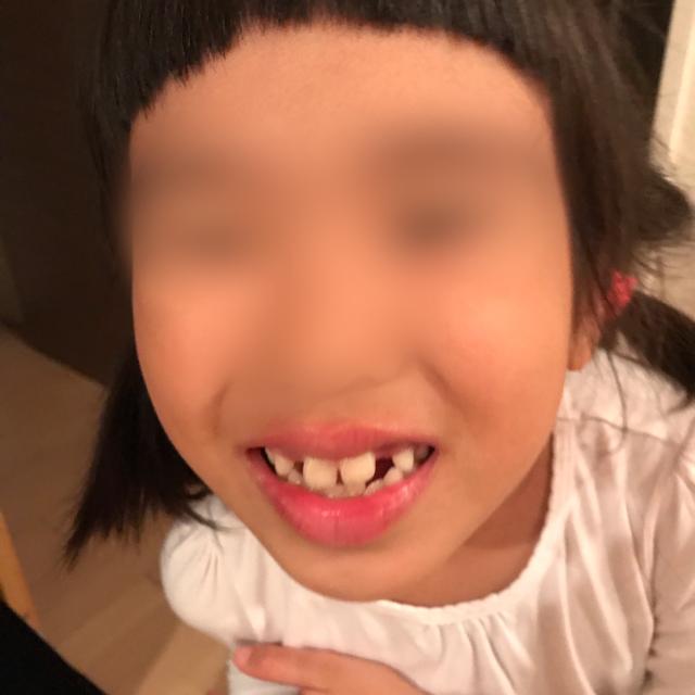 ハロウィンならぬ歯ロウィン