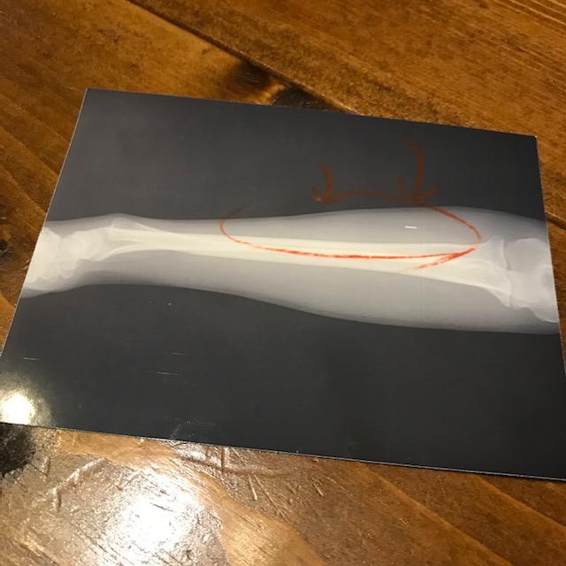 腱鞘炎一歩手前のレントゲン写真