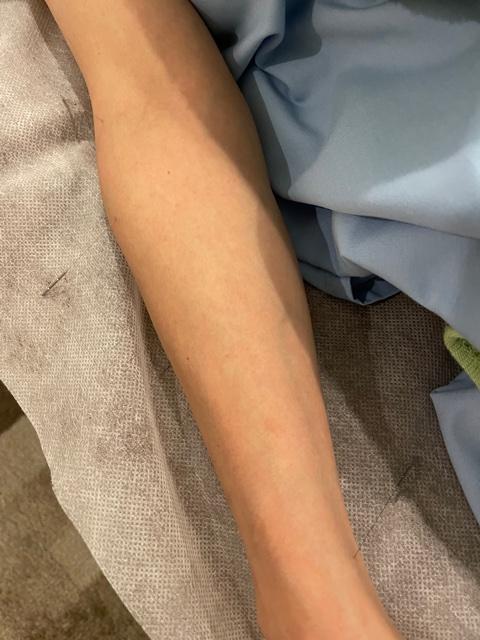 腕に鍼を打たれている写真