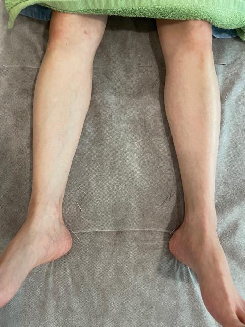 足に鍼を打たれている写真